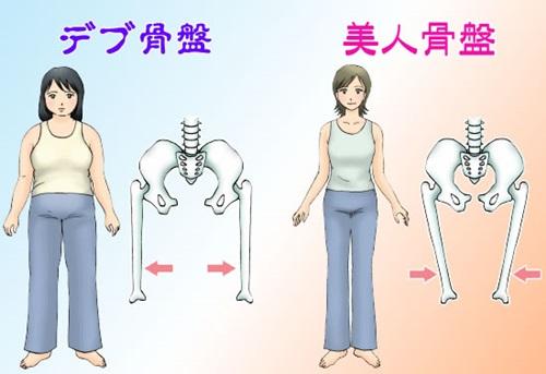 デブ骨盤と美人骨盤