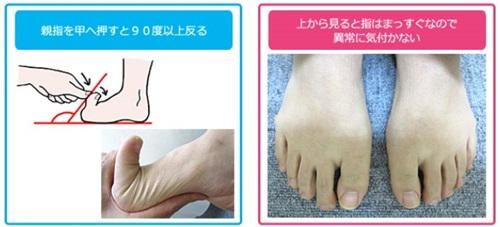浮き指の特徴