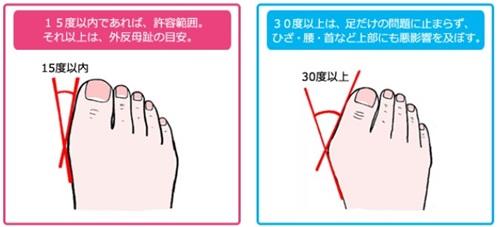 外反母趾の特徴