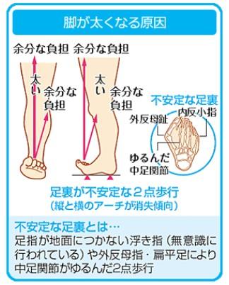 脚が太くなる原因